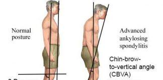 علایم Ankylosing spondylitis یا رماتیسم ستون فقرات